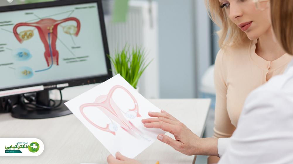 زنان مبتلا به سندرم تخمدان پلی کیستیک چگونه از کبد چرب جلوگیری کنند؟