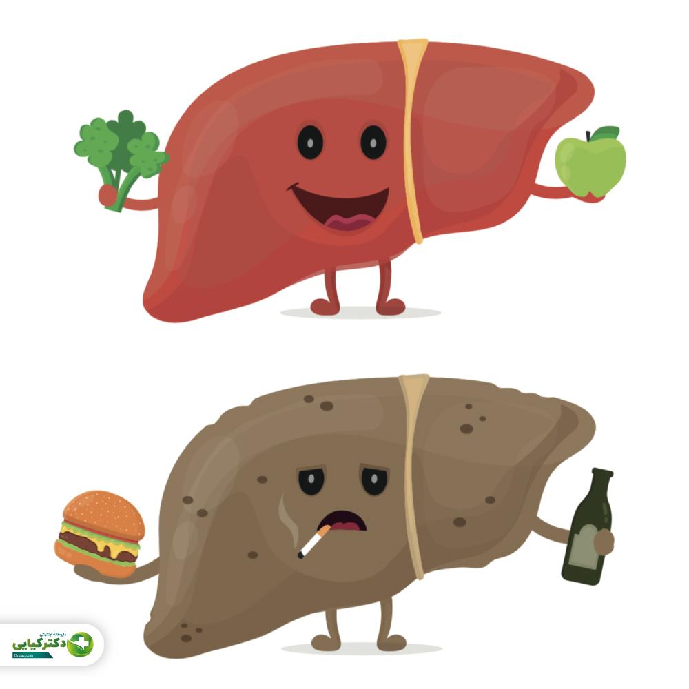 رژیم غذایی پیشنهادی برای مدیریت بهتر کبد چرب
