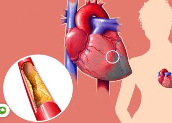 کاهش کلسترول بدون نیاز به مصرف داروهای نسخه ای